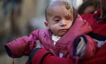 Baby Symbol of Syrian Civilians' Plight Safe in Turkey