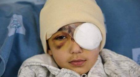 Israeli Forces Shoot Palestinian Boy in His Left Eye